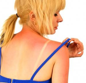 слънчево изгаряне не се лекува с мляко